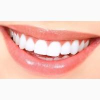 Профессиональное отбеливание зубов с помощью системы Beyond Polus